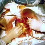کنترل خونریزی پس از عمل جراحی قلب