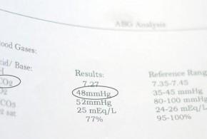 پارامترهای اصلی جهت تفسیر گاز های خون شریانی