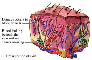 cross-section-of-skin