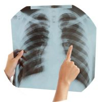 chest x-ray cover