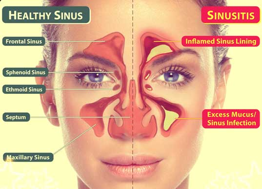 healthy-sinus-vs-sinusitis
