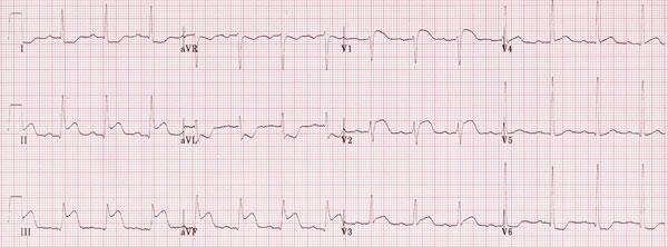 انفارکتوس تحتانی (inferior Mi) و بالا رفتگی قطعه ST در لید های V1 و V2