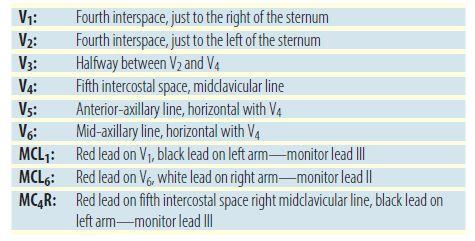 12-Lead Electrode