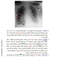 CV-line-(6)