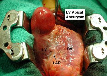 LV-apical-aneurysm