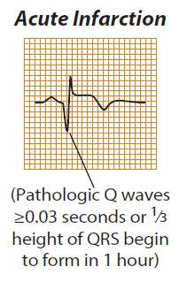 acute infarction