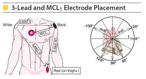 cardiac monitoring 1