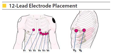 cardiac monitoring 2